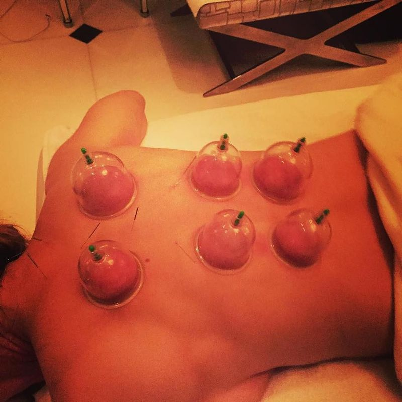 Instagram_cupping